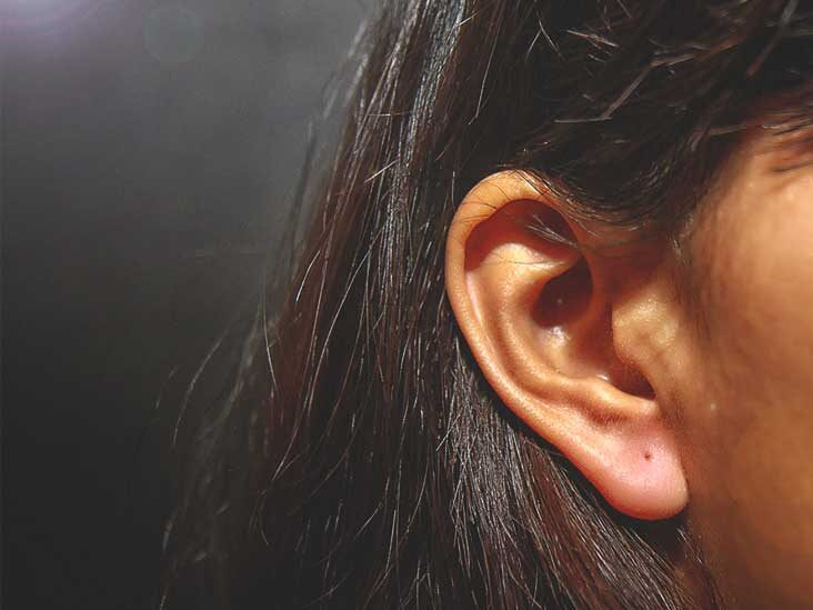 psoriasis flakes in ear