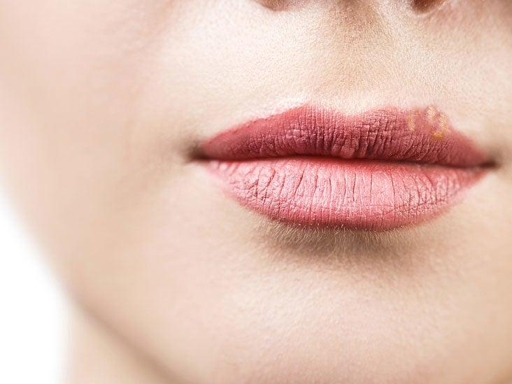 Hpv warts vs pimples. Hpv warts vs pimples