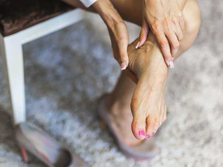 Cracked Heels: Remedies, Prevention, and More