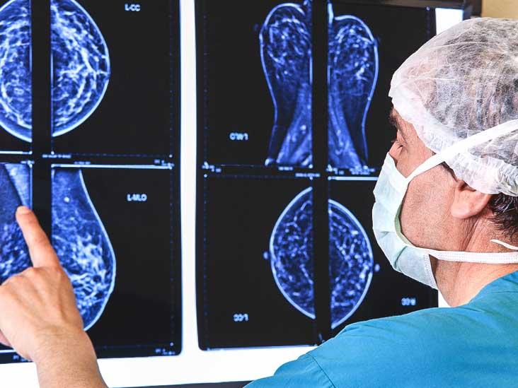Mammogram Images Understanding Your Results
