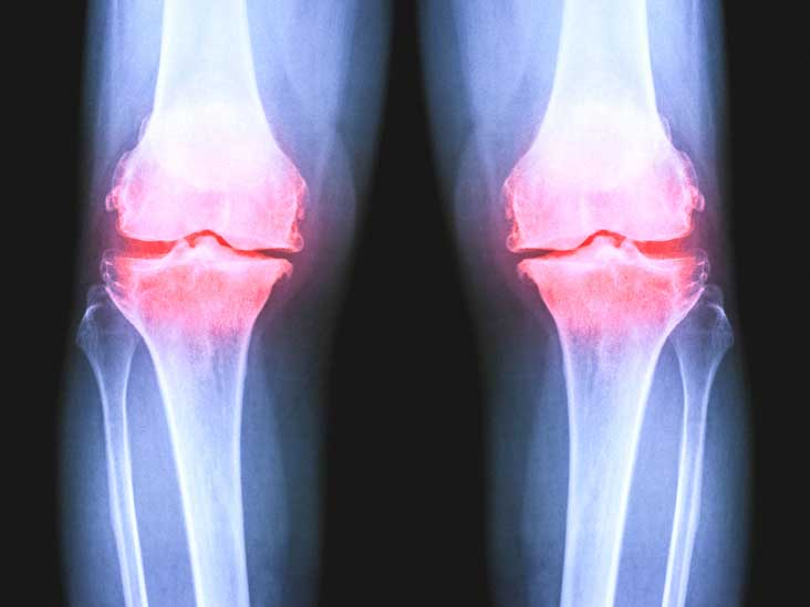 osteoarthritis radiology knee