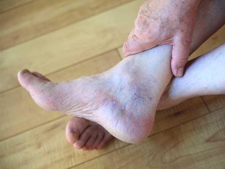 psoriasis arthritis labor)
