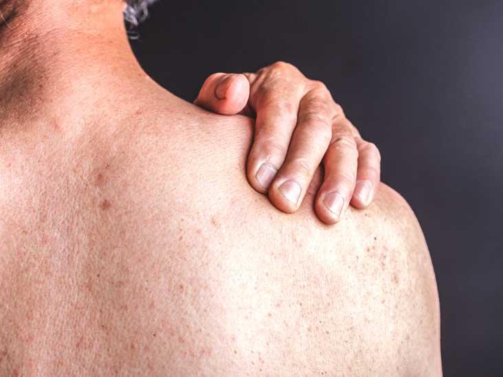 Efficacy of Acitretin in Severe Psoriasis