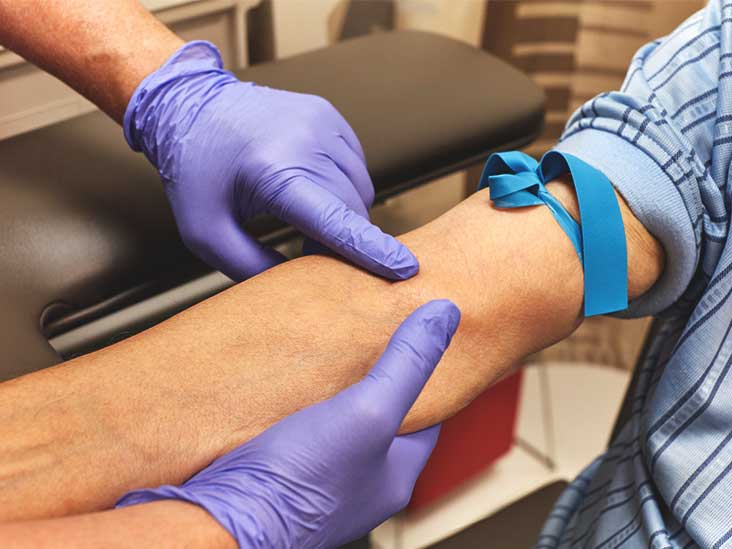 Fasting Before A Blood Test How Long To Fast And More