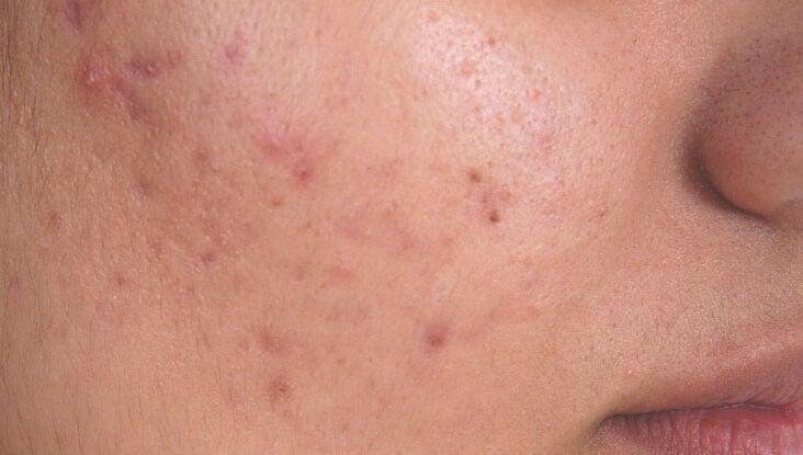 reacție alergică la helminți