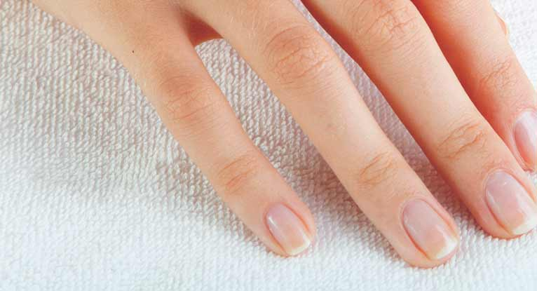 Information on Fungal Nail