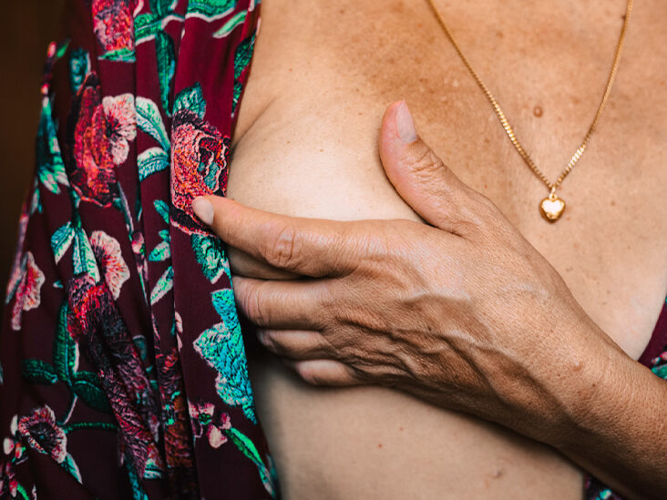 6 Overlooked Signs of Breast Cancer