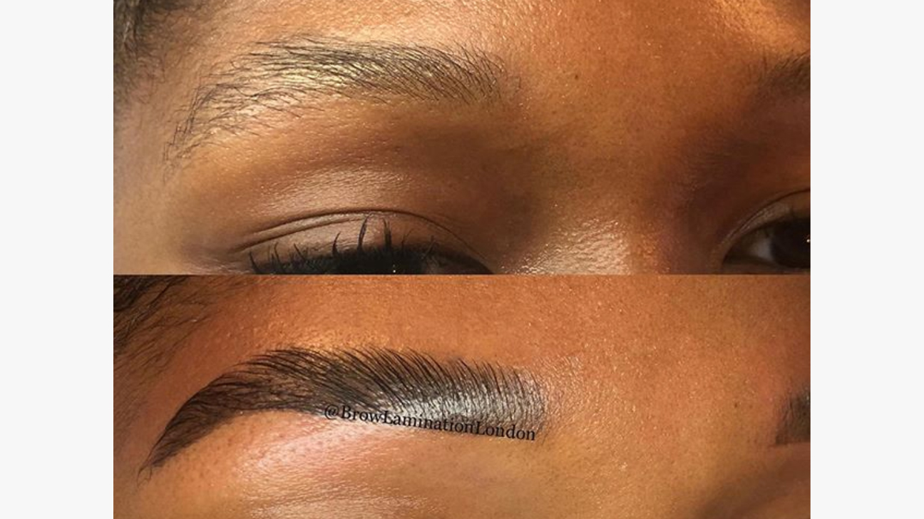 Brow Lamination Procedure Benefits Risks Costs And Pictures