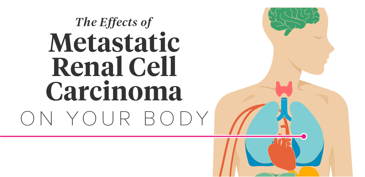 The Effects Of Metastatic Renal Cell Carcinoma On The Body
