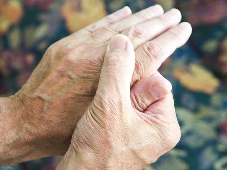 Rheumatoid Arthritis Symptoms Causes Treatment And More