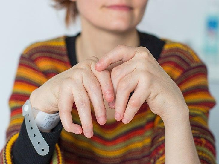 rheumatoid arthritis - Romanian translation – Linguee