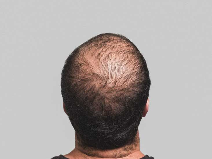 Cost of steroid injections for hair loss do homeopathic medicines contain steroids