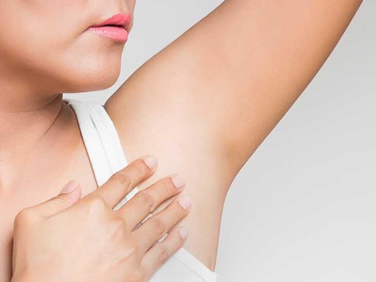 Understanding Deodorant Allergy And How To Treat It