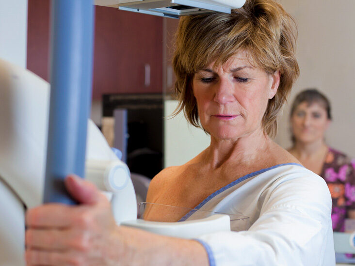 Lobular Breast Cancer: What Are the Prognosis and Survival Rates?
