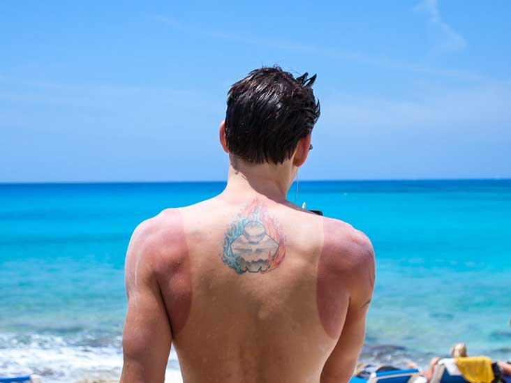 Sunburns And Damage To Your Body