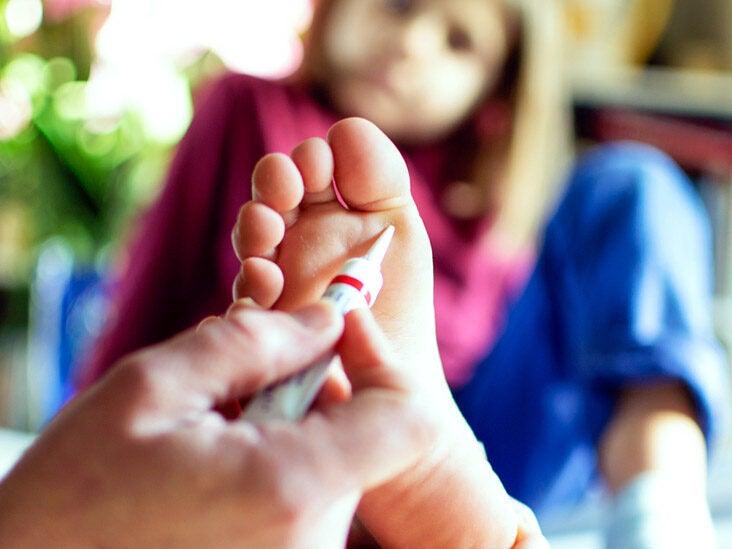 Wart on foot cream