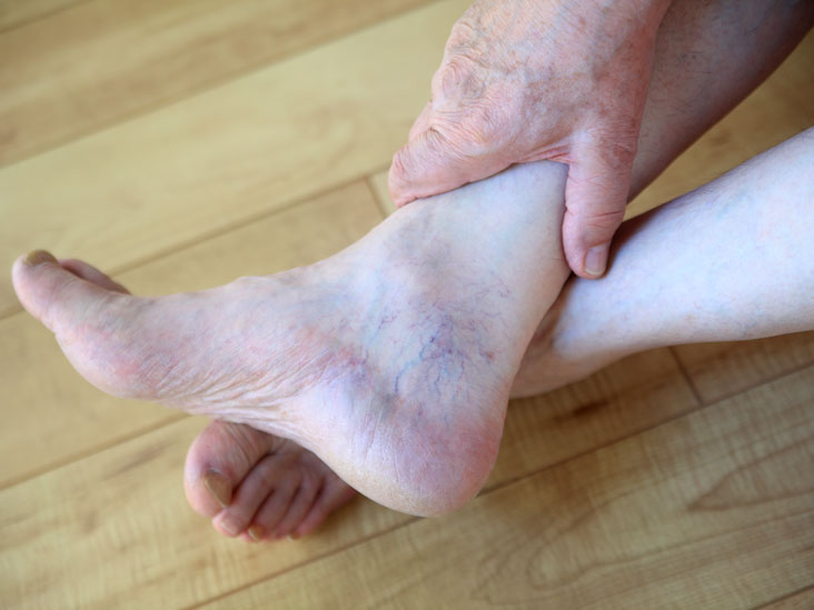 purple veins on feet