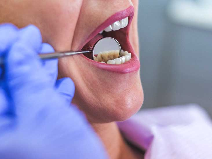 Abscessed Tooth: Types, Symptoms, Causes, Treatment, and Pictures