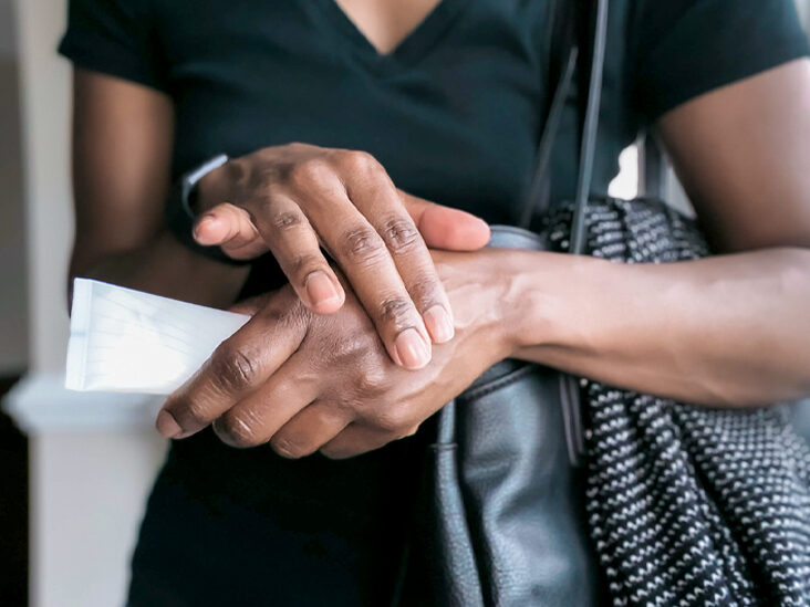 How to Identify Hives on Brown and Black Skin