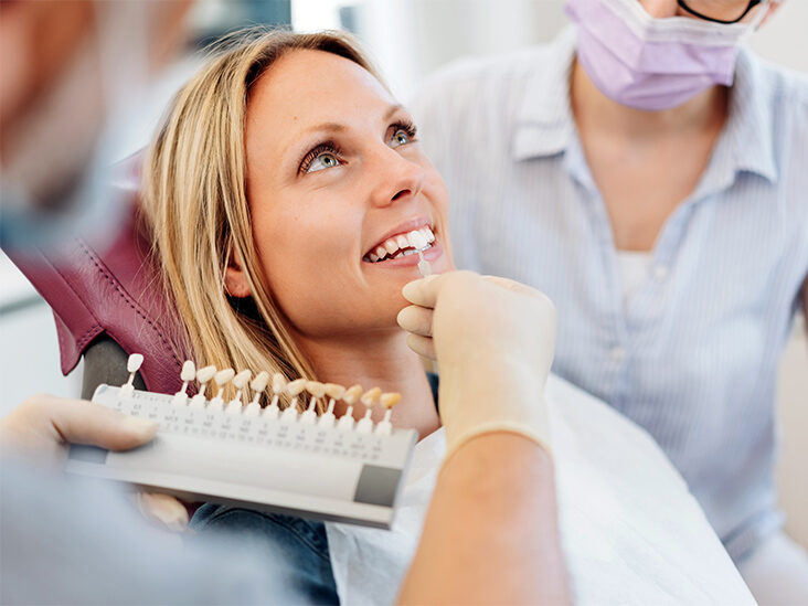 A Detailed Guideline on the Process of Getting Dental Veneers