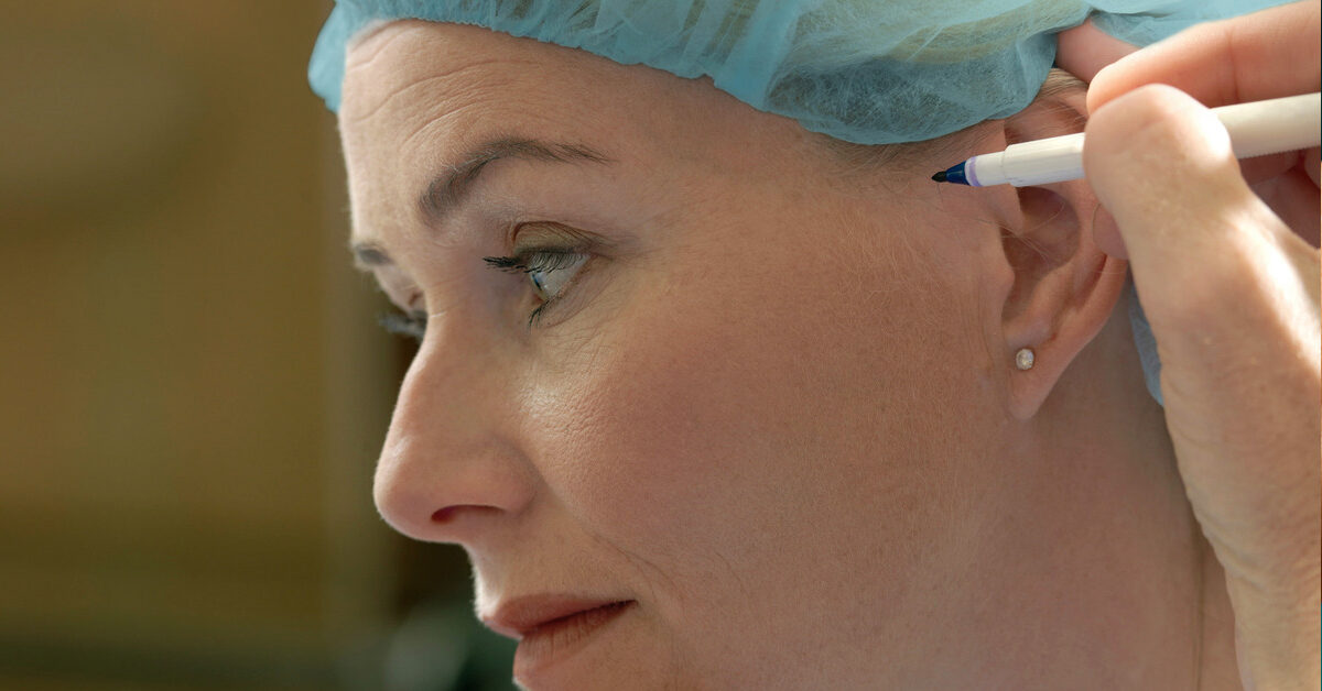 Cheeks Lifts Procedures Safe and Effective Surgery