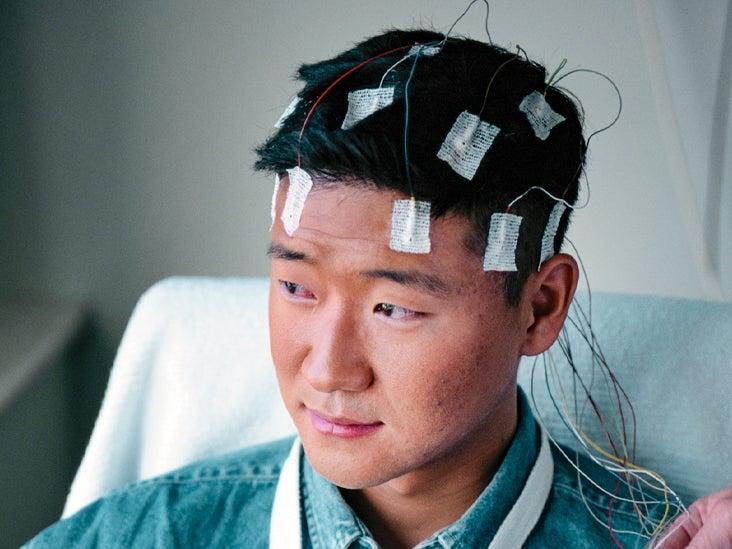 Epilepsy Monitoring 732x549 thumbnail.