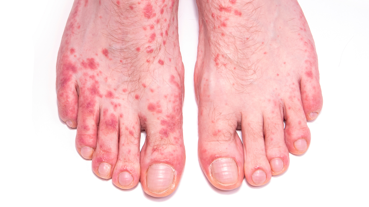 warts on hands hiv)