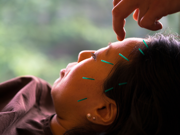 Can Acupuncture Optimize Sleep Patterns and Free You from Insomnia?