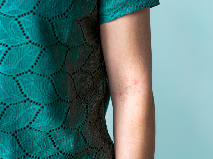 Could Your Hives Be Allergy — Or an Autoimmune Disorder?