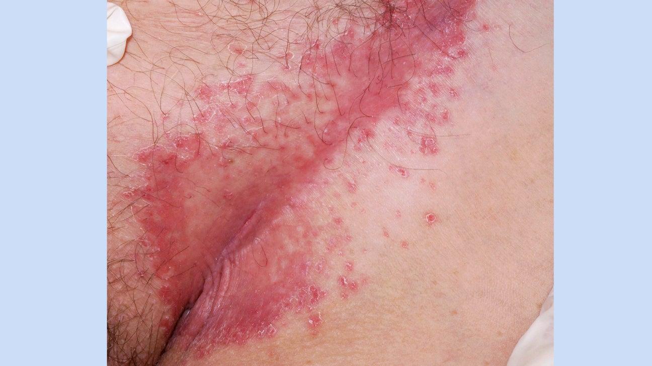 inverse psoriasis dermnet nz