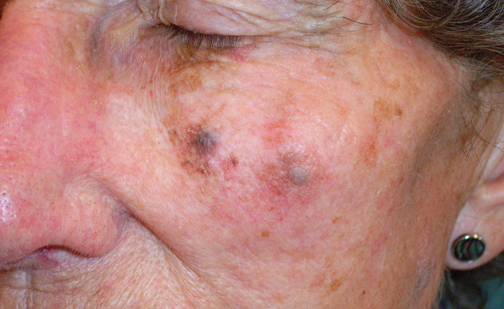 Lentigo maligna melanoma: Pictures, symptoms, and outlook