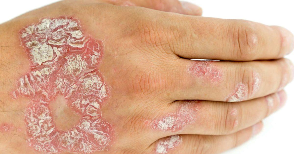 psoriasis skin peeling off