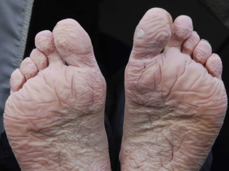 Athlete S Foot Home Remedies Treatment And Causes