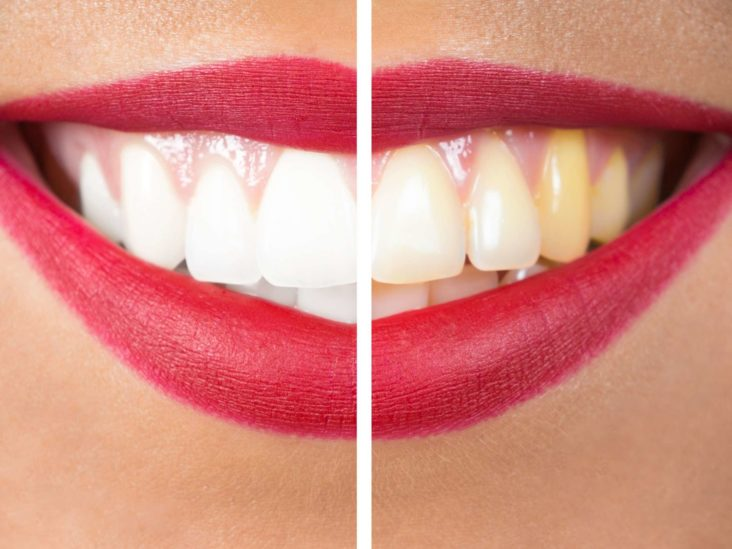 White Gums Causes Symptoms And How To Get Rid Of Them