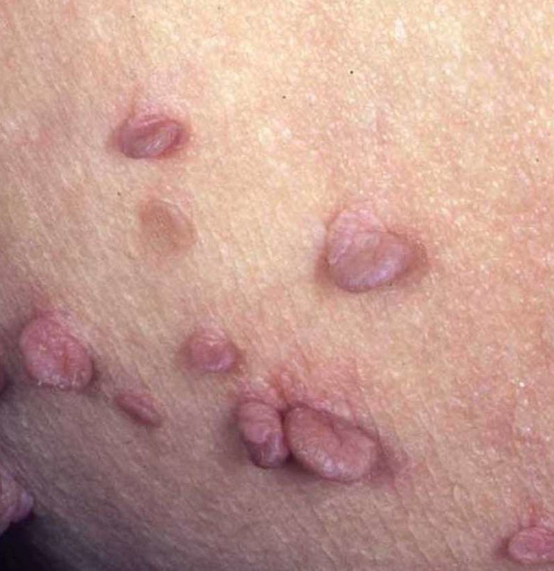 Anal Skin Tag Removal Recovery And Prevention