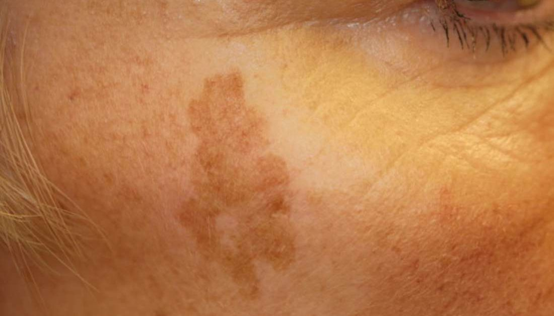 Age Spots Causes Symptoms And Treatment