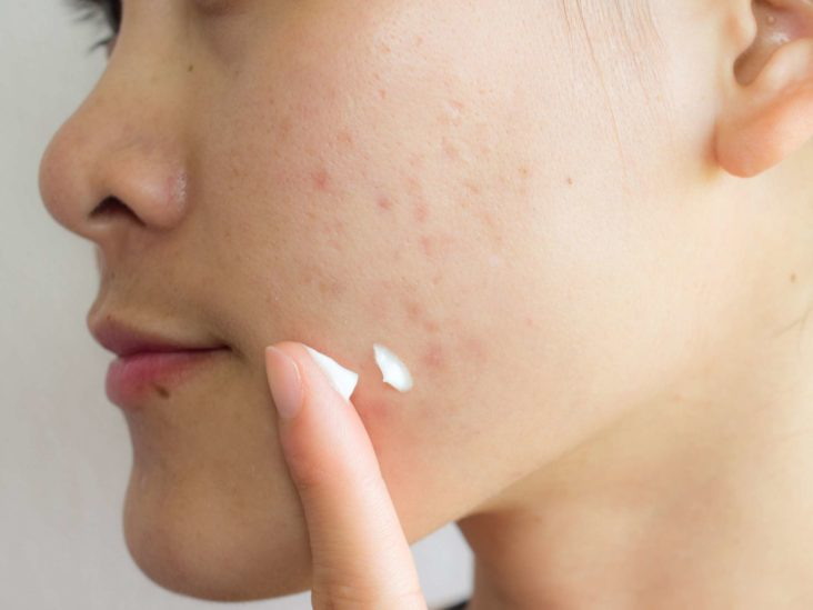 Birth Control For Acne How It Works Types And Side Effects