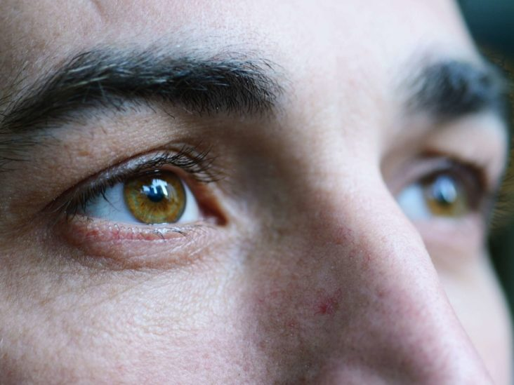 Eye floaters: What causes them, and what can you do?