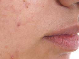 Acne Treatment For Teens Medications And Home Remedies