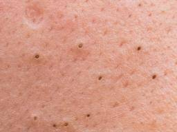 Comedonal Acne Pictures Treatment And Remedies