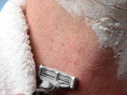 Laser Hair Removal Side Effects Is It Safe Is It Painful And More