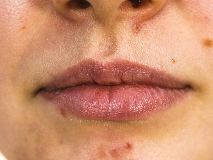 Acne Around Mouth Causes Prevention And Treatment